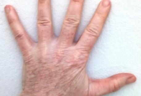 A Dinâmica dos Cinco Dedos da Mão